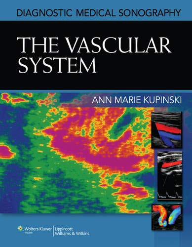 The Vascular System (Diagnostic Medical Sonography Series): Kupinski PhD RVT,