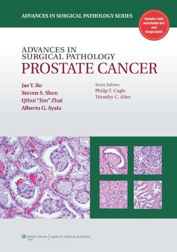 Advances in Surgical Pathology: Prostate Cancer: Ro MD PhD,