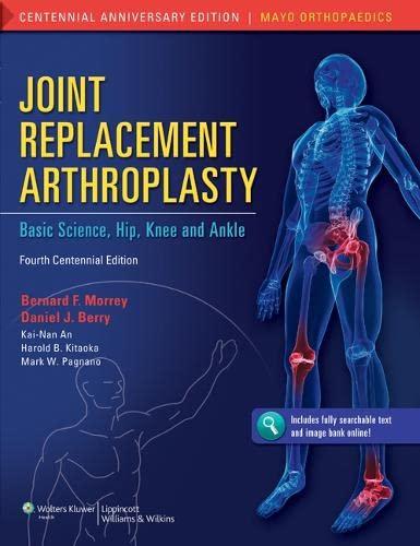 Joint Replacement Arthroplasty: Volume 2: Kai-Nan An