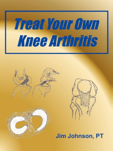 9781608448432: Treat Your Own Knee Arthritis