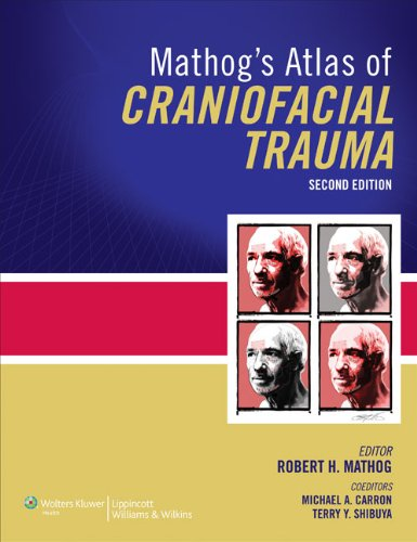 Mathog s Atlas of Craniofacial Trauma (Hardback): Robert H. Mathog, Terry Shibuya, Michael A. ...