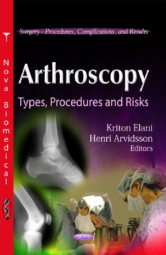 Arthroscopy (Surgery-Procedures, Complications, and Results)