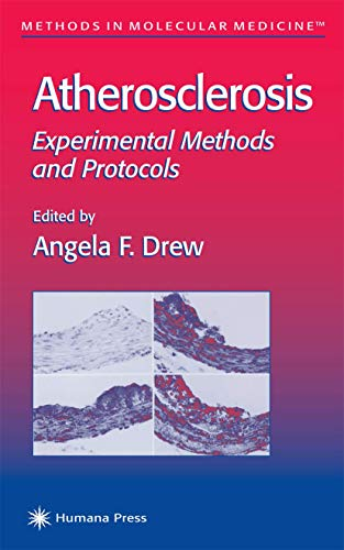9781617371684: Atherosclerosis: Experimental Methods and Protocols (Methods in Molecular Medicine)