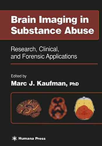 Brain Imaging in Substance Abuse (Paperback)