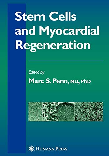 9781617377051: Stem Cells and Myocardial Regeneration (Contemporary Cardiology)