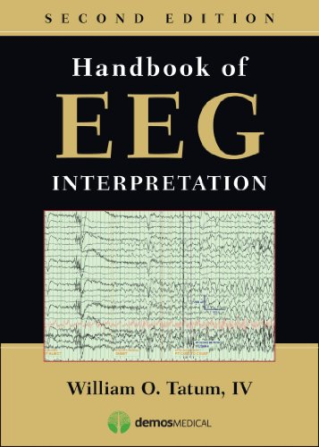 Handbook of EEG Interpretation: William O. Tatum IV