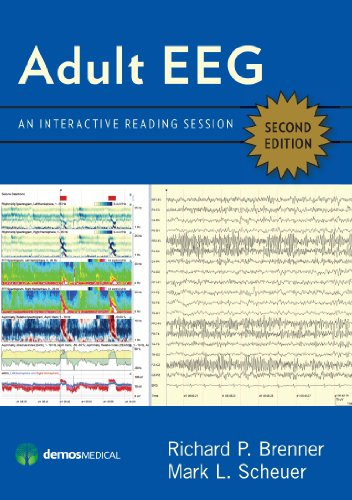 9781620700228: Adult EEG, Second Edition DVD: An Interactive Reading Session