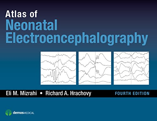 9781620700679: Atlas of Neonatal Electroencephalography, Fourth Edition