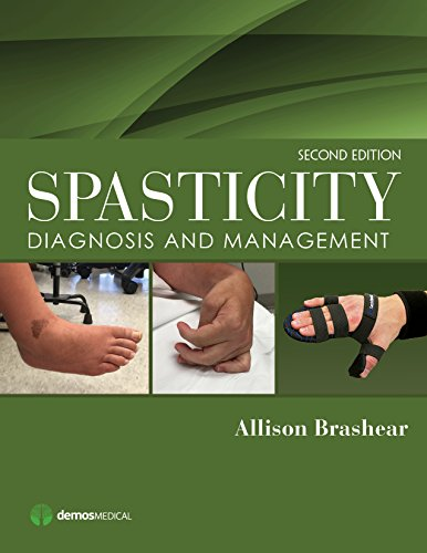 9781620700723: Spasticity, Second Edition: Diagnosis and Management