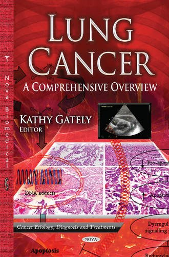 9781626184473: Lung Cancer: A Comprehensive Overview (Cancer Etiology, Diagnosis and Treatments)