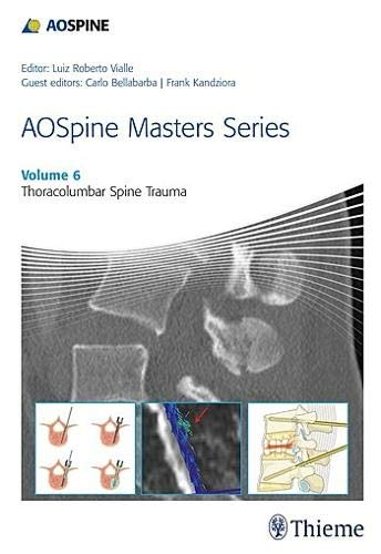 9781626232259: AOSpine Masters Series, Volume 6: Thoracolumbar Spine Trauma