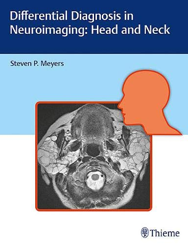 Differential Diagnosis in Neuroimaging: Head and Neck: Thieme