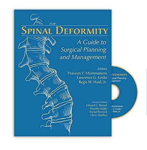 Spinal Deformity: A Guide to Surgical Planning and Management: Thieme