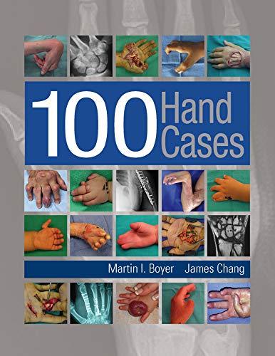 100 Hand Cases (Hardcover): Martin I. Boyer