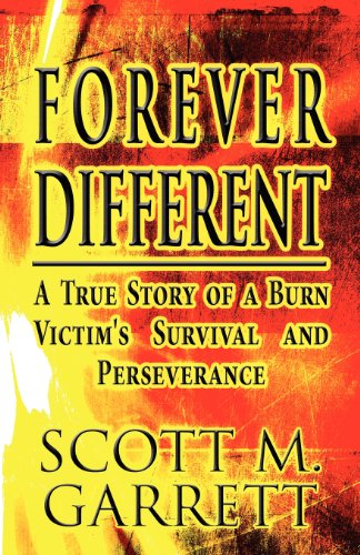 9781627099868: Forever Different: A True Story of a Burn Victim's Survival and Perseverance