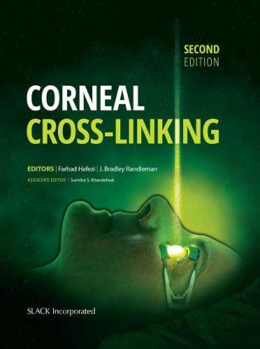 9781630912109: Corneal Cross-Linking