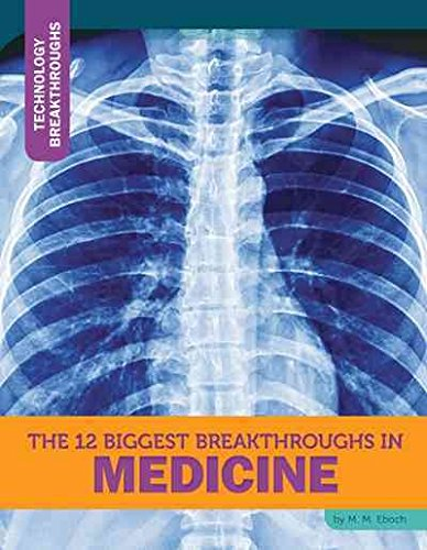 9781632350152: The 12 Biggest Breakthroughs in Medicine (Technology Breakthroughs)