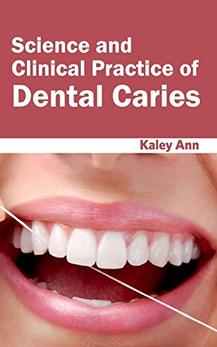 9781632423603: Science and Clinical Practice of Dental Caries