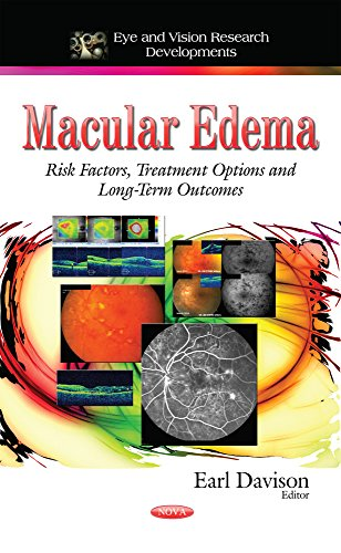 Macular Edema (Eye and Vision Research Developments) (Hardcover)