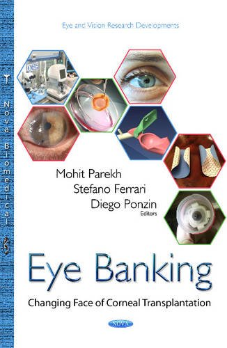 9781634826495: Eye Banking: Changing Face of Corneal Transplantation (Eye Vision Research Developmen)