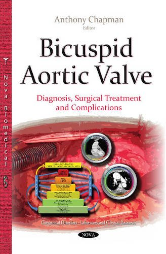 9781634827867: Bicuspid Aortic Valve: Diagnosis, Surgical Treatment and Complications