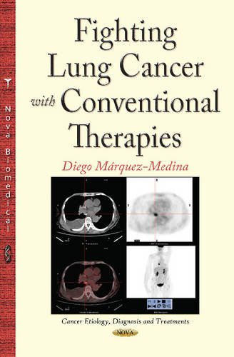 Fighting Lung Cancer with Conventional Therapies: Márquez-Medina, Diego