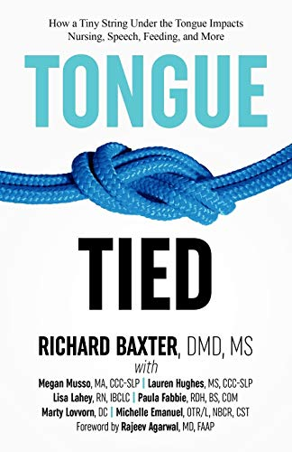 Tongue-Tied: How a Tiny String Under the: Baxter DMD MS,