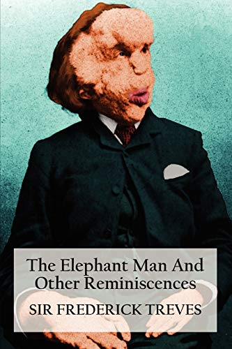 9781781391808: The Elephant Man and Other Reminiscences