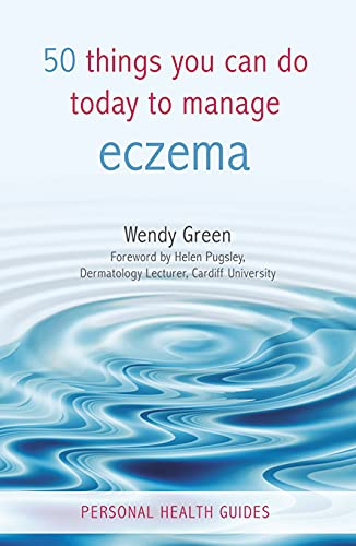9781840247213: 50 Things You Can Do Today to Manage Eczema (Personal Health Guides)