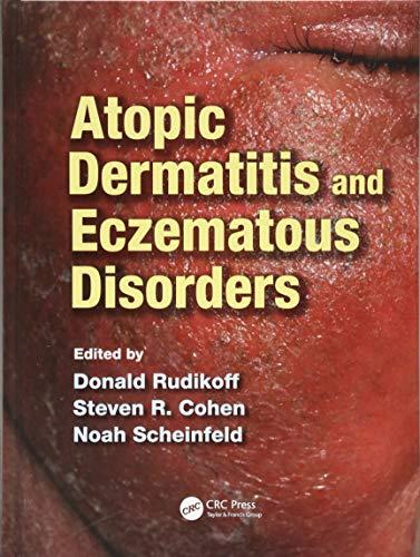 9781840761955: Atopic Dermatitis and Eczematous Disorders