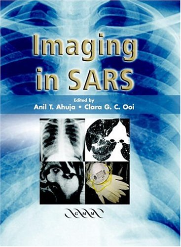 9781841102191: Imaging in SARS