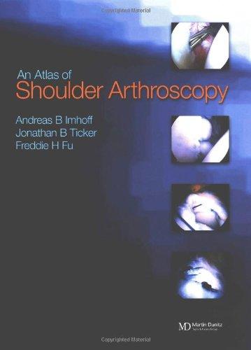 9781841840017: Atlas of Shoulder Arthroscopy