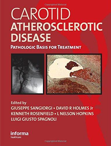 Carotid Atherosclerotic Disease: Pathologic Basis for Treatment: Guiseppe Sangiorgi, David