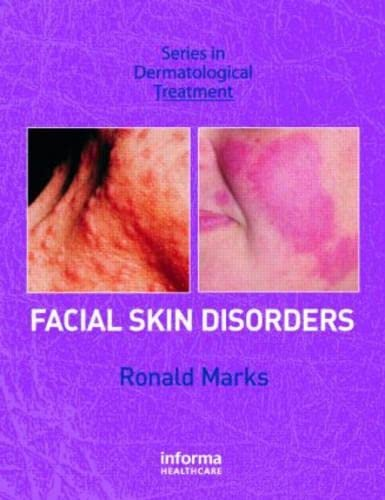 Facial Skin Disorders: Marks, Ronald