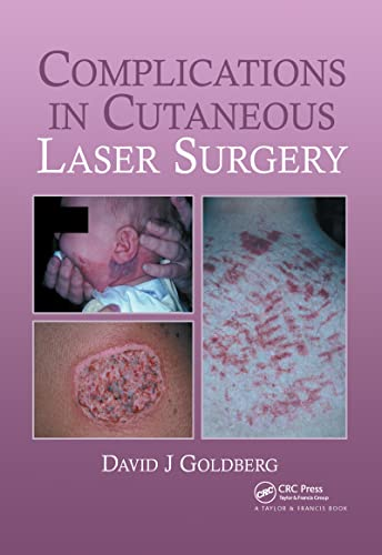 9781841842455: Complications in Laser Cutaneous Surgery