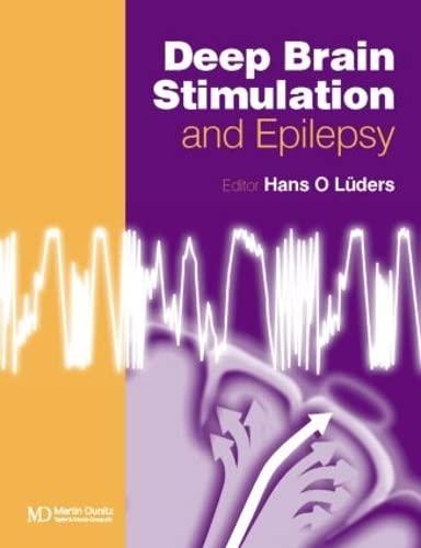 9781841842592: Deep Brain Stimulation and Epilepsy