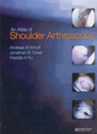 9781841843377: Atlas of Shoulder Arthroscopy