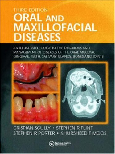 9781841843384: Oral and Maxillofacial Diseases: An Illustrated Guide to Diagnosis and Management of Diseases of the Oral Mucosa, Gingivae, Teeth, Salivary Glands, Bones and Joints