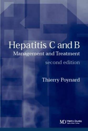 9781841843698: Hepatitis B and C: Management and Treatment