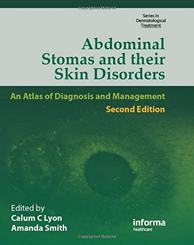 9781841844312: Abdominal Stomas and Their Skin Disorders,Second Edition (Series in Dermatological Treatment)