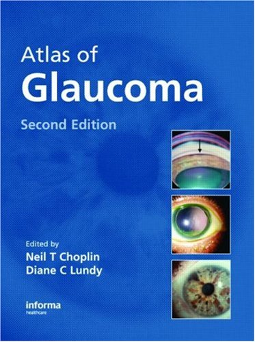 9781841845180: Atlas of Glaucoma, Second Edition
