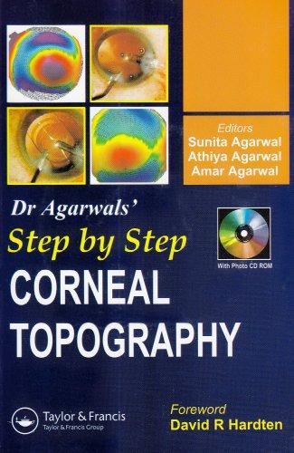 Step by Step Corneal Topography: Sunita Agarwal (Editor),