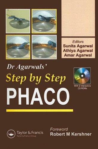Step by Step Phacoemulsification