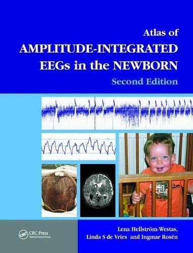 An Atlas of Amplitude-Integrated EEGs in the Newborn, Second Edition (Encyclopedia of Visual ...