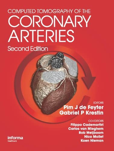 9781841846576: Computed Tomography of the Coronary Arteries