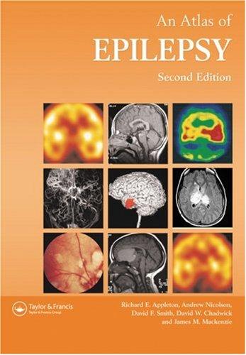 9781842140277: Atlas of Epilepsy (ENCYCLOPEDIA OF VISUAL MEDICINE SERIES)