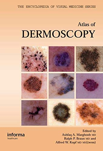 9781842142257: An Atlas of Dermoscopy (Encyclopedia of Visual Medicine Series)