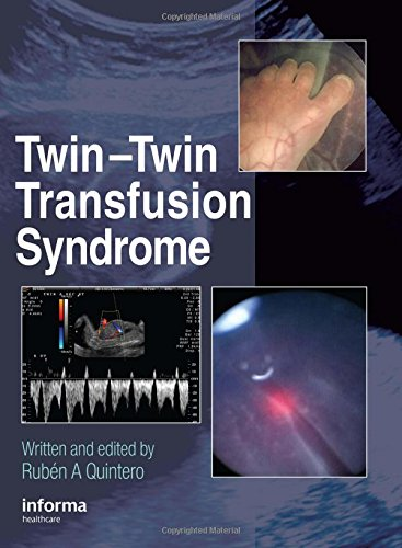 9781842142981: Twin-Twin Transfusion Syndrome