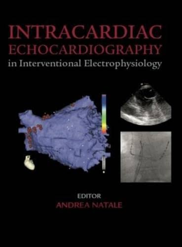 Intracardiac Echocardiography in Interventional Electrophysiology: Advanced Management: Natale, Andrea/ Wilber,