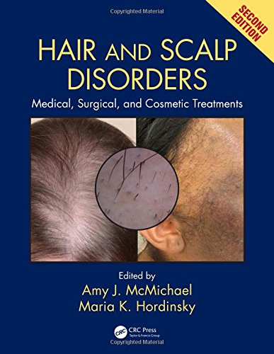 9781842145920: Hair and Scalp Disorders: Medical, Surgical, and Cosmetic Treatments